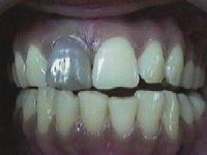 ушиб зуба