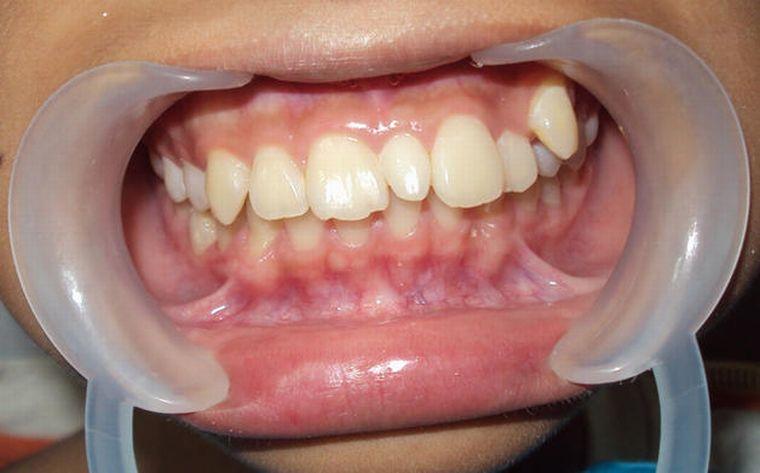 На приеме у ортодонта