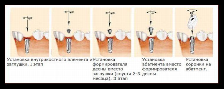 Как ставится зубной имплант