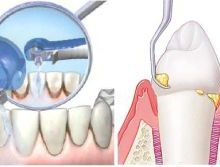 скейлинг зубов