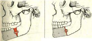 виды операций на челюсти