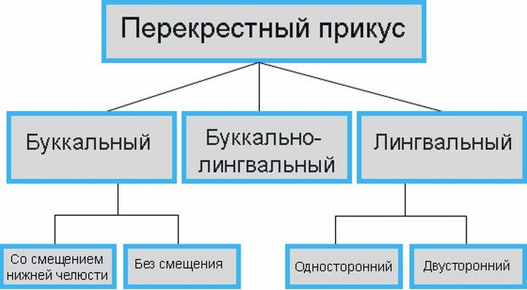 Буккальный и лингвальный перекрестный прикус