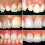 До и после реставрации зубов винирами