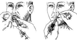 Введение анестетика
