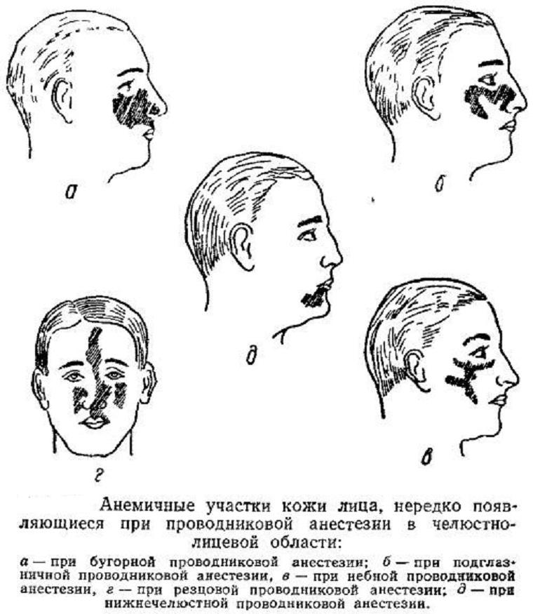 Зона обезболивания при проводниковой анестезии