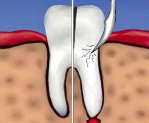удаление части зуба