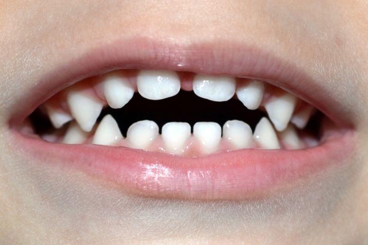 Зубная окклюзия