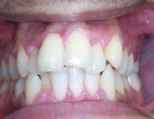 скученность зубов