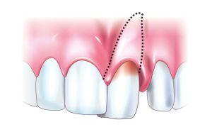 неполный вывих зуба
