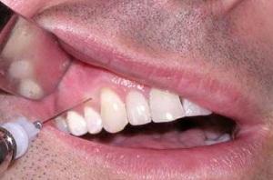 Обезболивание верхней челюсти