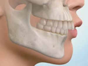 Аномалия челюсти