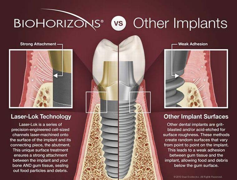 Технологии biohorizons