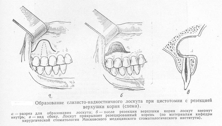 цистотомия зуба