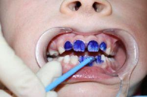 Окрашивание поверхности зубов