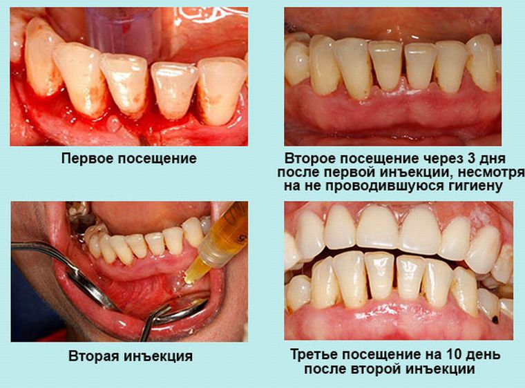 десна до и после лечения