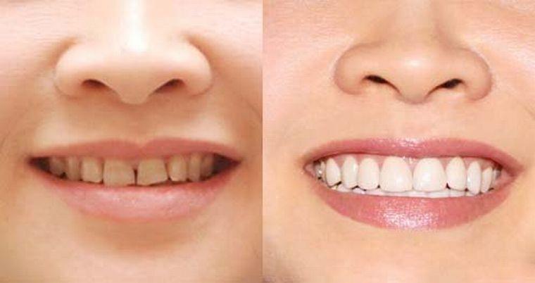 До и после коррекции зубного ряда