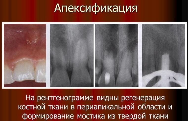 формирование верхушки корня зуба
