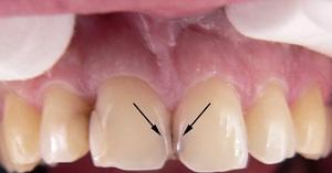 Кариес между передними зубами