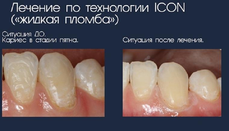 До и после лечения Icon