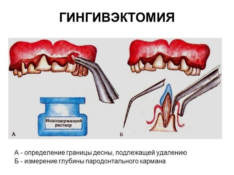 гингивэктомия