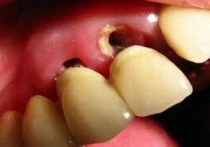 Оголение корня зуба