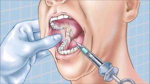 мандибулярная анестезия