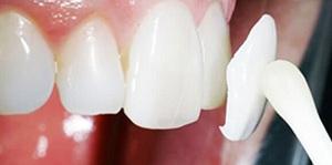 Накладка на зубы