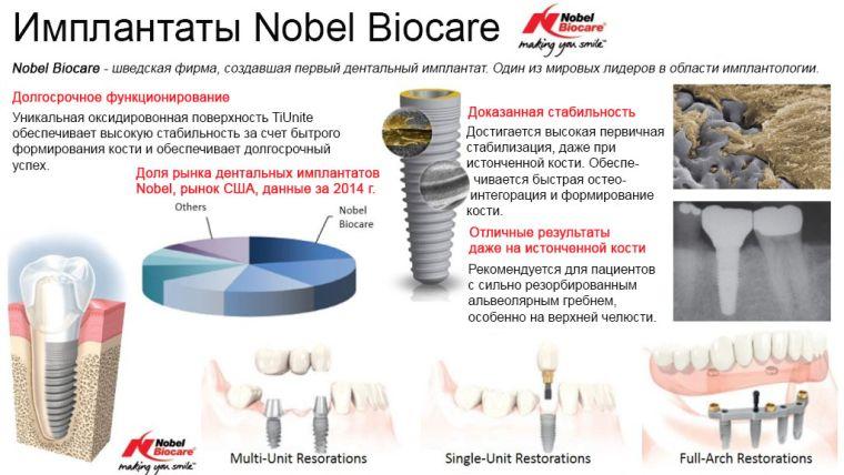 в какой стране делать импланты