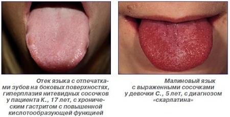 Отек и отпечатки языка