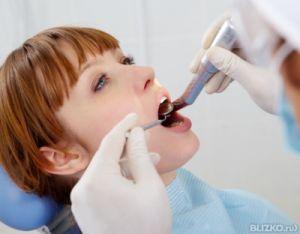 Пломбирование корня зуба