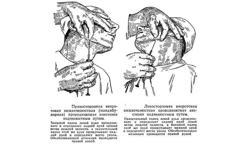 Подчелюстная анестезия