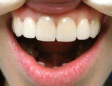 Протезы на передние зубы