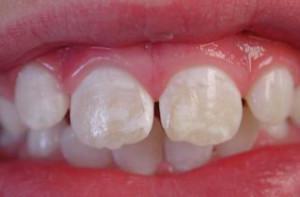 деминерализация зубной поверхности