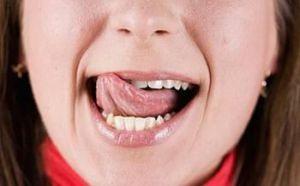Язык во рту