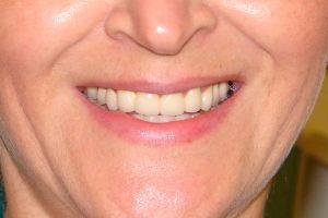 Улыбка во все зубы