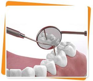 Зондирование стоматологическое