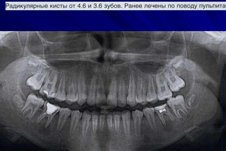 Кисты зуба