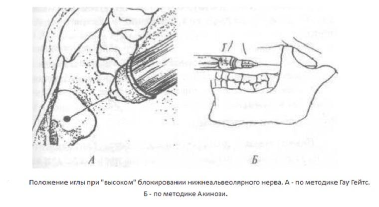 Анестезия Акинози