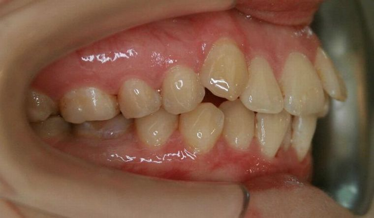 Бимаксиллярно – обоечелюстное протрузивное положение зубов