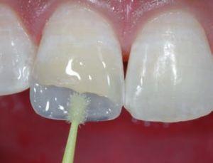бондинг в стоматологии