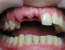 Отсутствует три зуба