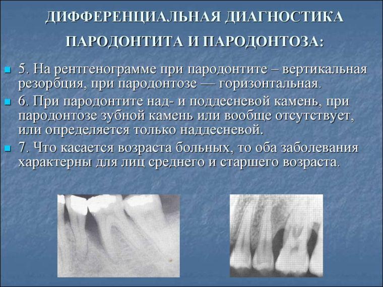 Дифференциальная диагностика пародонтоза и пародонтита