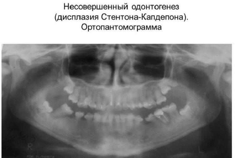 синдром Стентона-Капдепона
