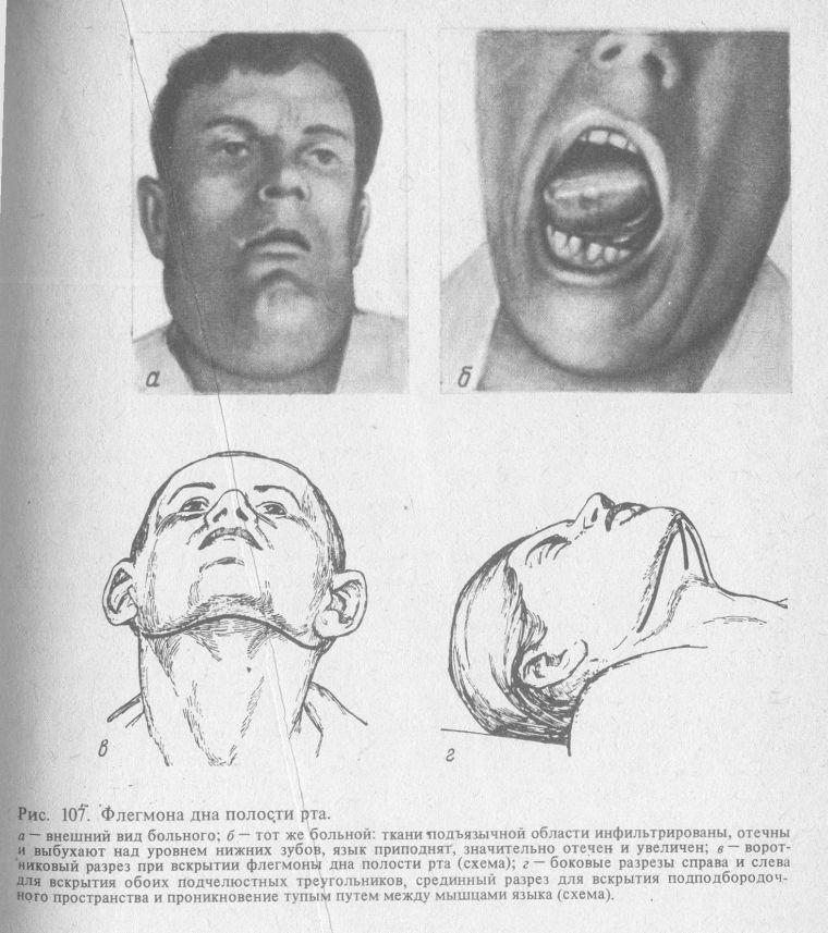 запах изо рта при гастродуодените лечение