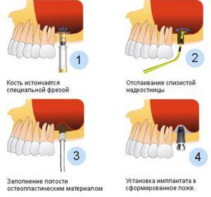 Наращивание костей челюсти