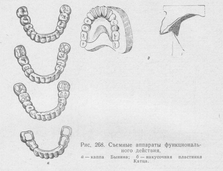 ортодонтические аппараты функционального действия