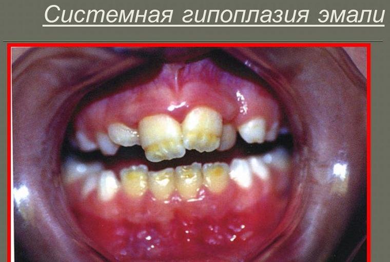 Системная гипоплазия эмали
