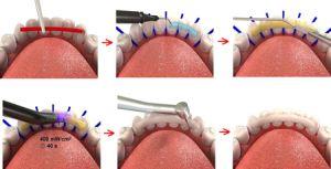 периодонтальное шинирование зубов