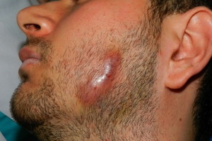 актиномикоз на лице