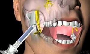 Стоматологическая анастезия